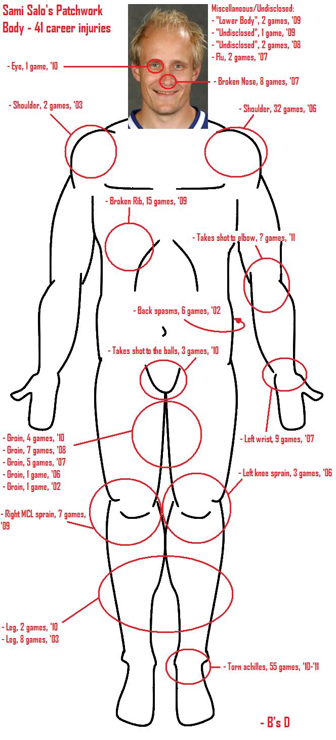 Znalezione obrazy dla zapytania: sami salo injury